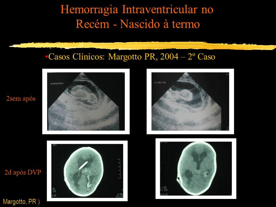 Hemorragia Intraventricular no Recém - Nascido à termo Casos Clínicos: Margotto PR, 2004 – 2º Caso 2sem após 2d após DVP Margotto, PR )