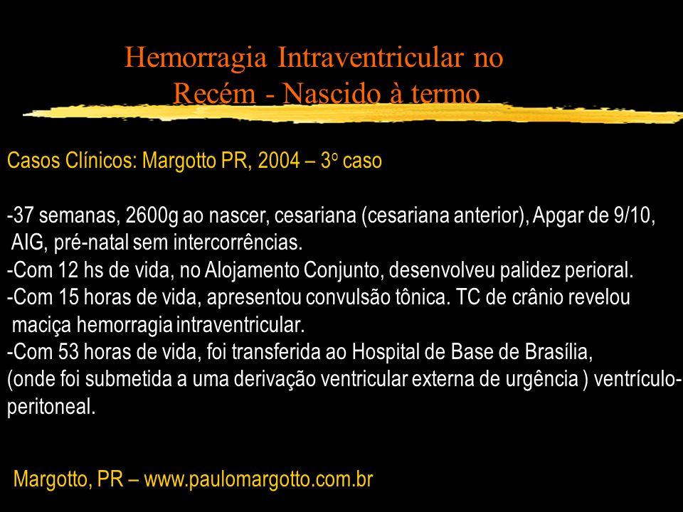 Hemorragia Intraventricular no Recém - Nascido à termo Casos Clínicos: Margotto PR, 2004 – 3 o caso -37 semanas, 2600g ao nascer, cesariana (cesariana