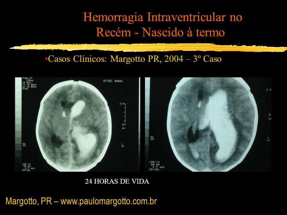 Hemorragia Intraventricular no Recém - Nascido à termo Casos Clínicos: Margotto PR, 2004 – 3º Caso 24 HORAS DE VIDA Margotto, PR – www.paulomargotto.c