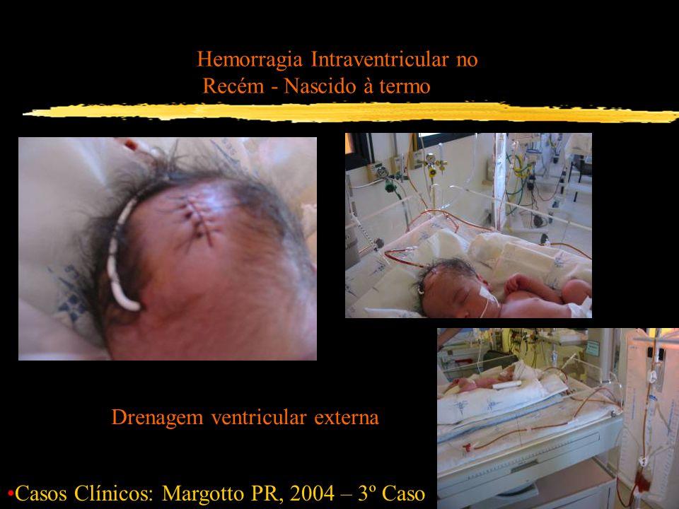 Hemorragia Intraventricular no Recém - Nascido à termo Casos Clínicos: Margotto PR, 2004 – 3º Caso Drenagem ventricular externa