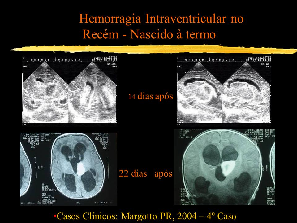 Hemorragia Intraventricular no Recém - Nascido à termo Casos Clínicos: Margotto PR, 2004 – 4º Caso 14 dias após 22 dias após