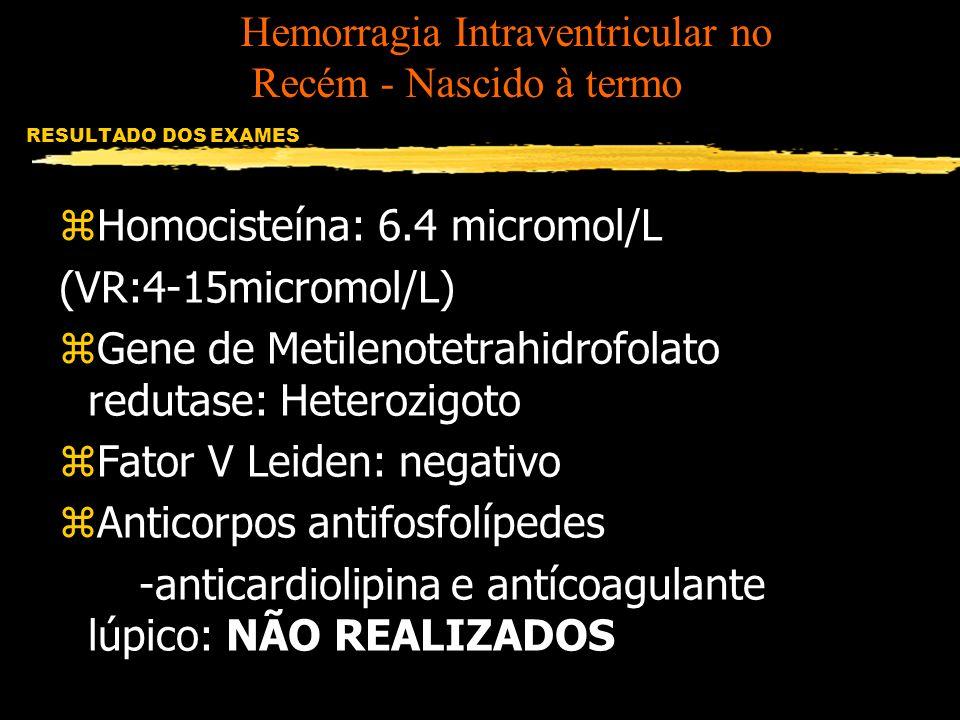 RESULTADO DOS EXAMES zHomocisteína: 6.4 micromol/L (VR:4-15micromol/L) zGene de Metilenotetrahidrofolato redutase: Heterozigoto zFator V Leiden: negat