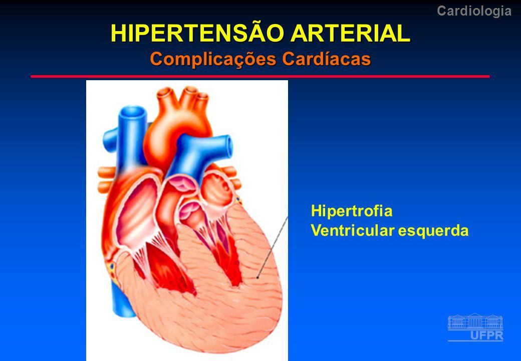 Cardiologia Hipertrofia Ventricular esquerda HIPERTENSÃO ARTERIAL Complicações Cardíacas