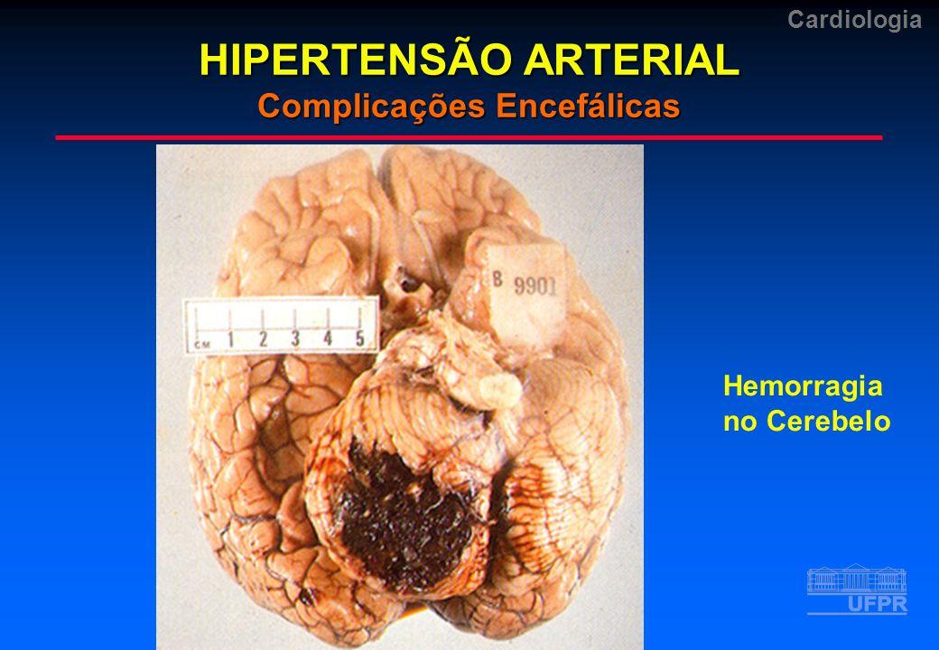 Cardiologia HIPERTENSÃO ARTERIAL Complicações Encefálicas Hemorragia no Cerebelo