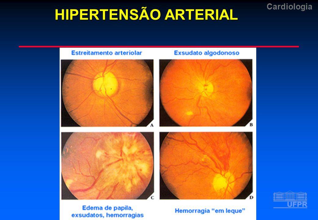 Cardiologia HIPERTENSÃO ARTERIAL