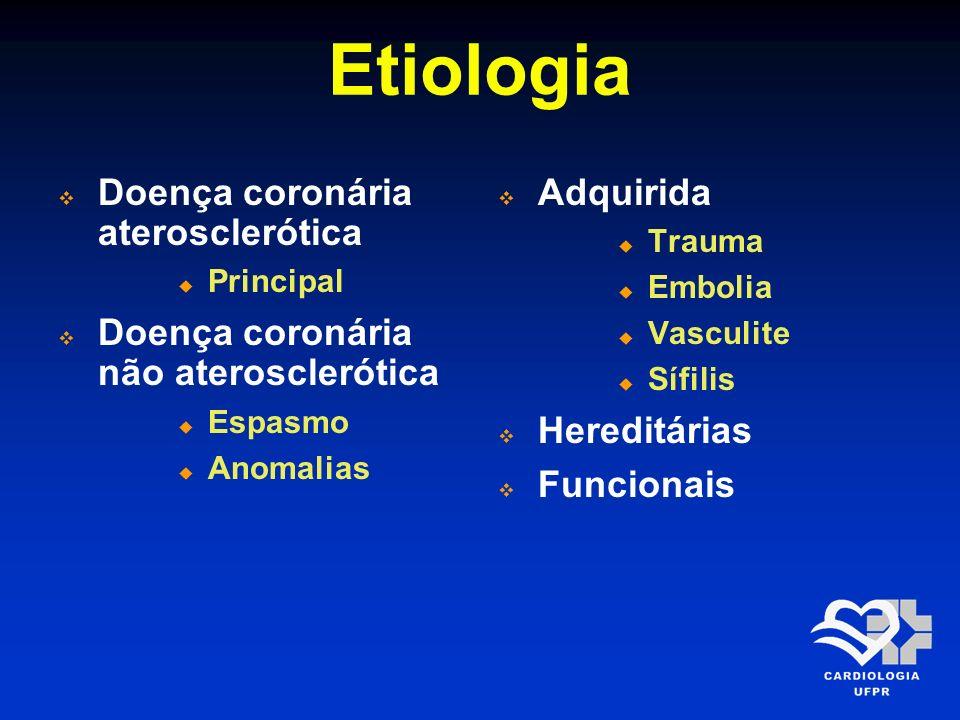 Etiologia Doença coronária aterosclerótica Principal Doença coronária não aterosclerótica Espasmo Anomalias Adquirida Trauma Embolia Vasculite Sífilis