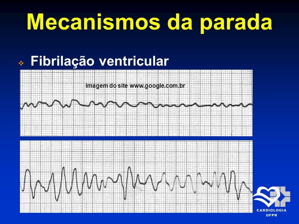 Mecanismos da parada Fibrilação ventricular Imagem do site www.google.com.br