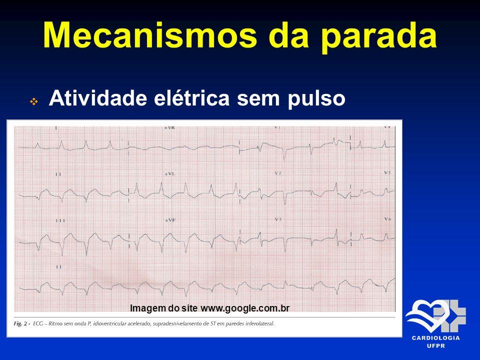 Mecanismos da parada Atividade elétrica sem pulso Imagem do site www.google.com.br