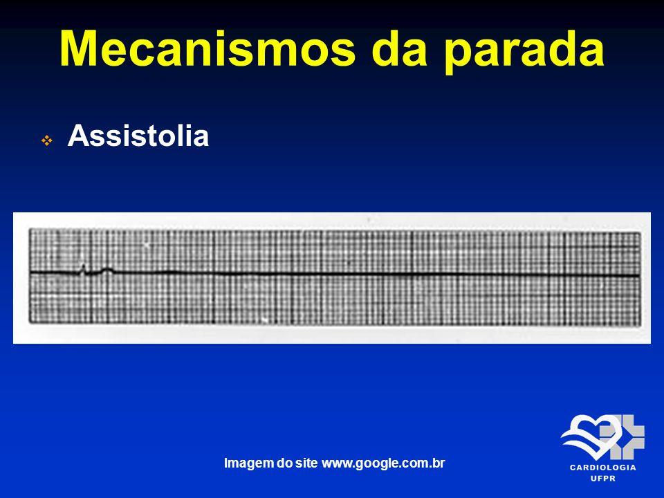Mecanismos da parada Assistolia Imagem do site www.google.com.br