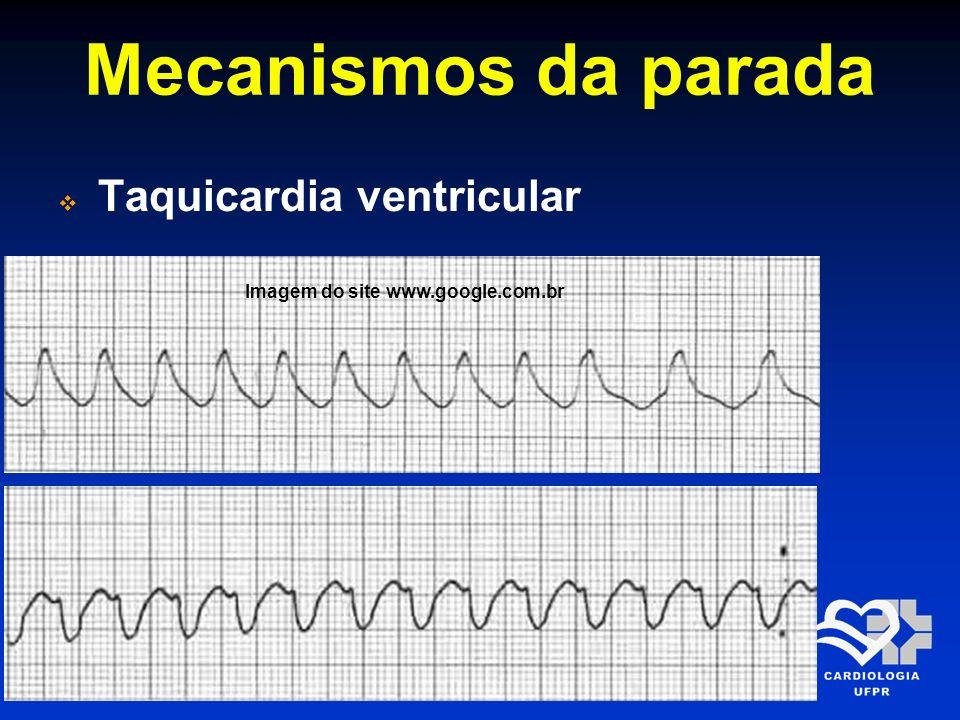 Mecanismos da parada Taquicardia ventricular Imagem do site www.google.com.br