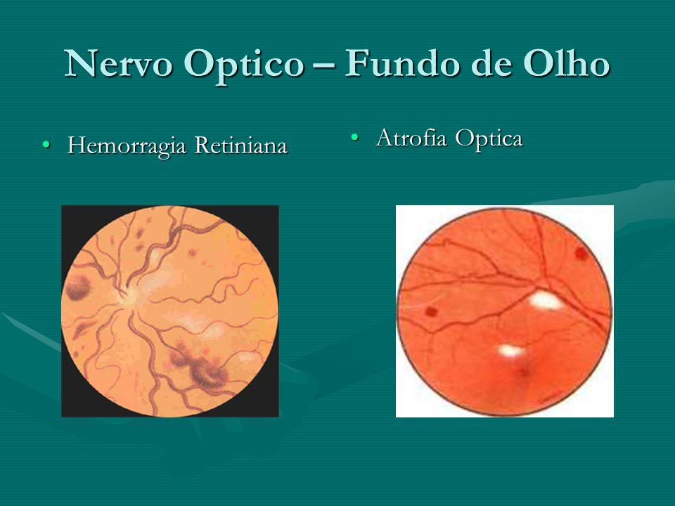 Nervo Optico – Fundo de Olho Hemorragia RetinianaHemorragia Retiniana Atrofia Optica