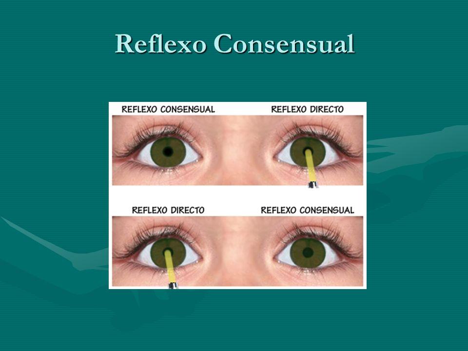 Reflexo Consensual