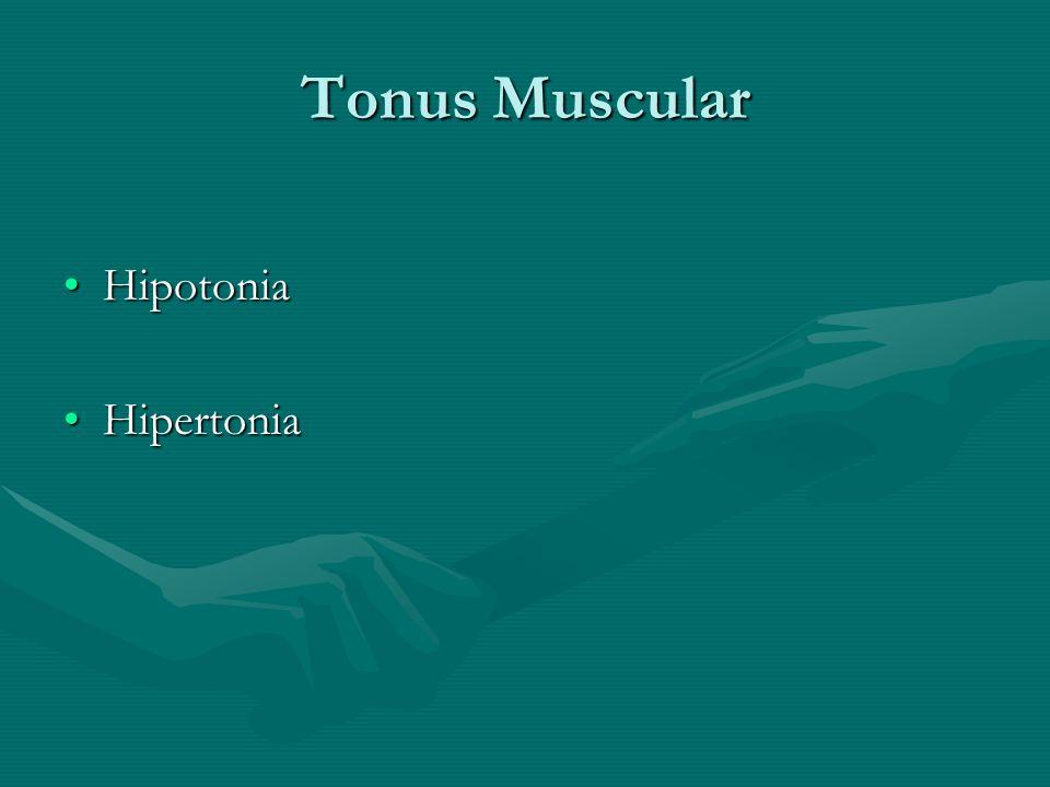 Tonus Muscular HipotoniaHipotonia HipertoniaHipertonia