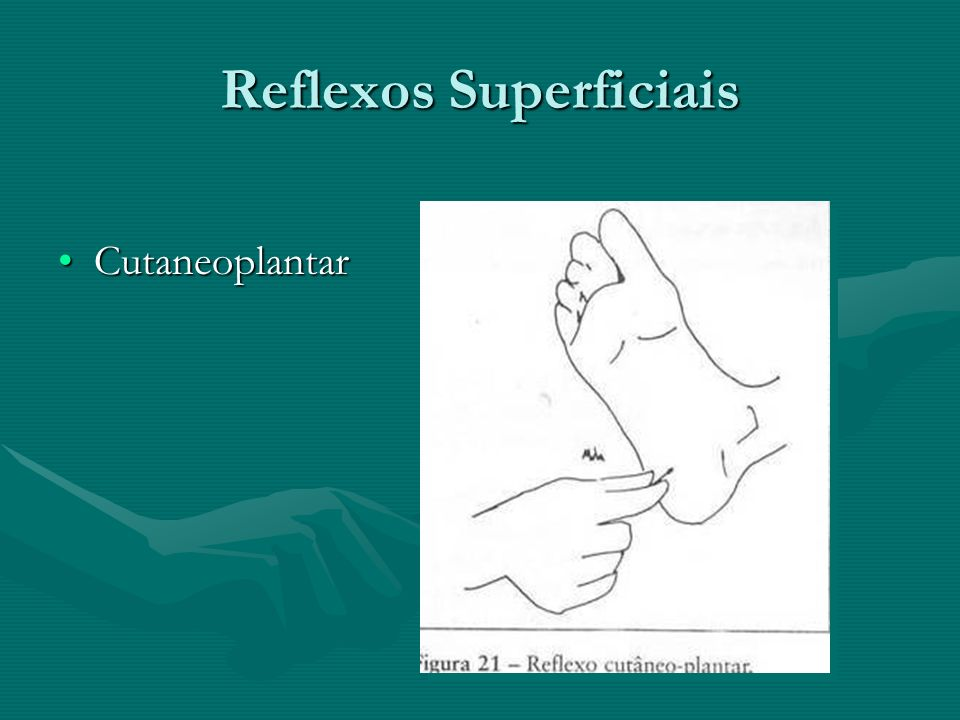 Reflexos Superficiais CutaneoplantarCutaneoplantar