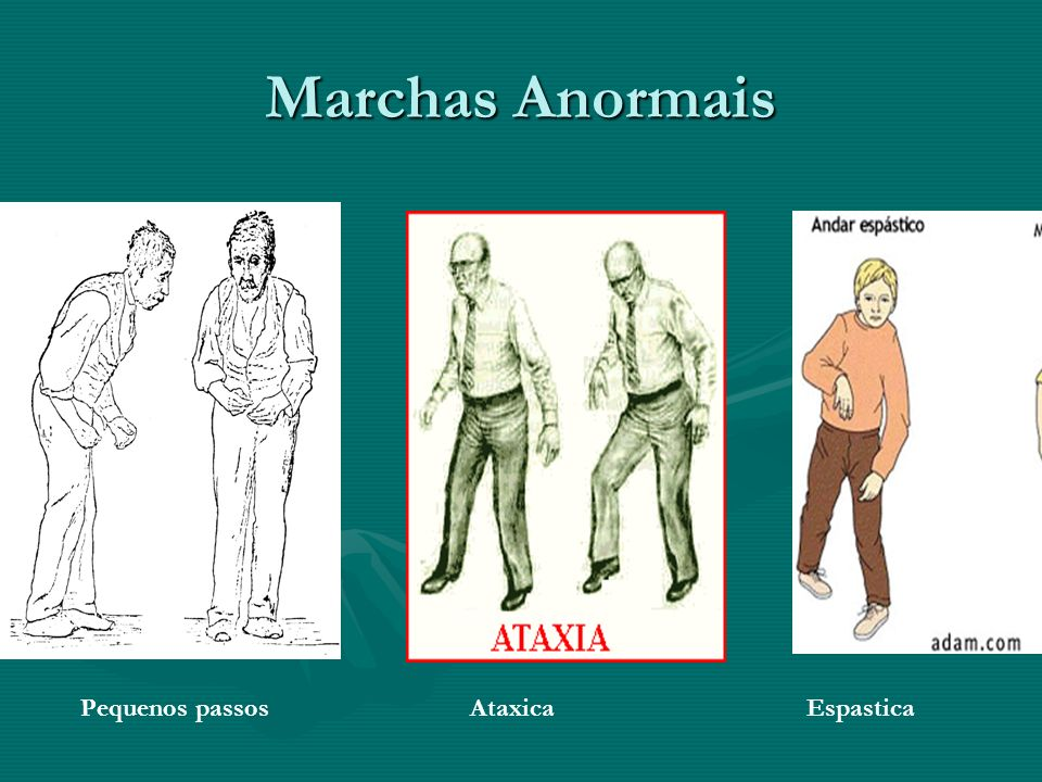 Marchas Anormais Pequenos passos Ataxica Espastica