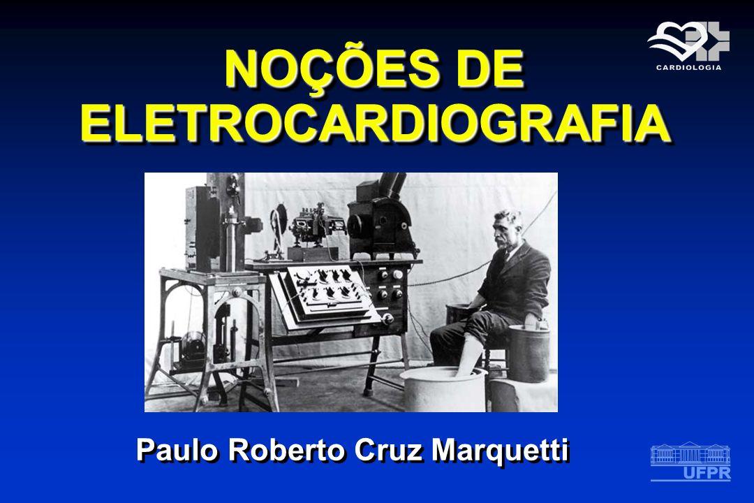 NOÇÕES DE ELETROCARDIOGRAFIA Paulo Roberto Cruz Marquetti
