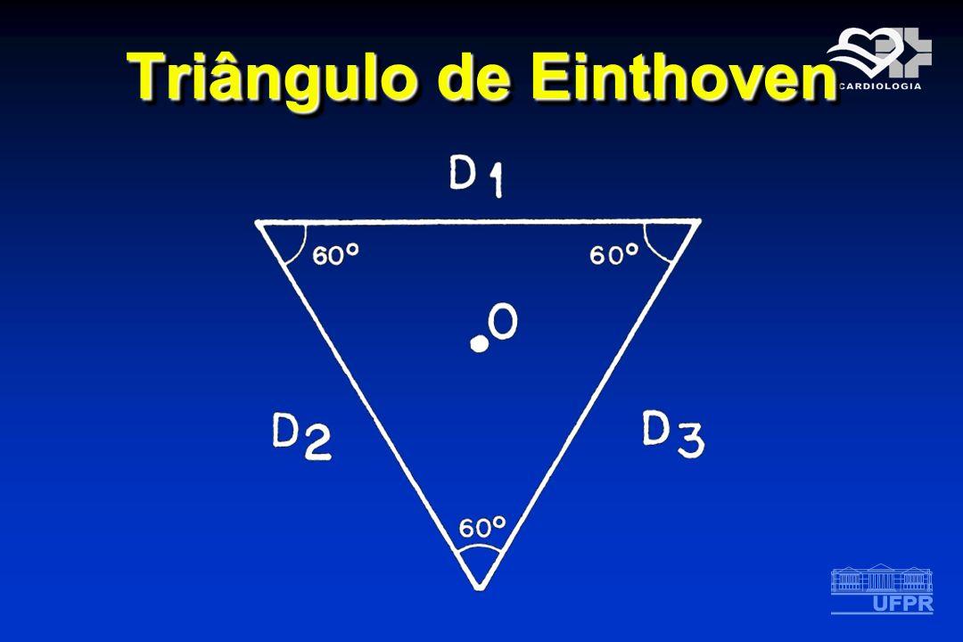 Triângulo de Einthoven