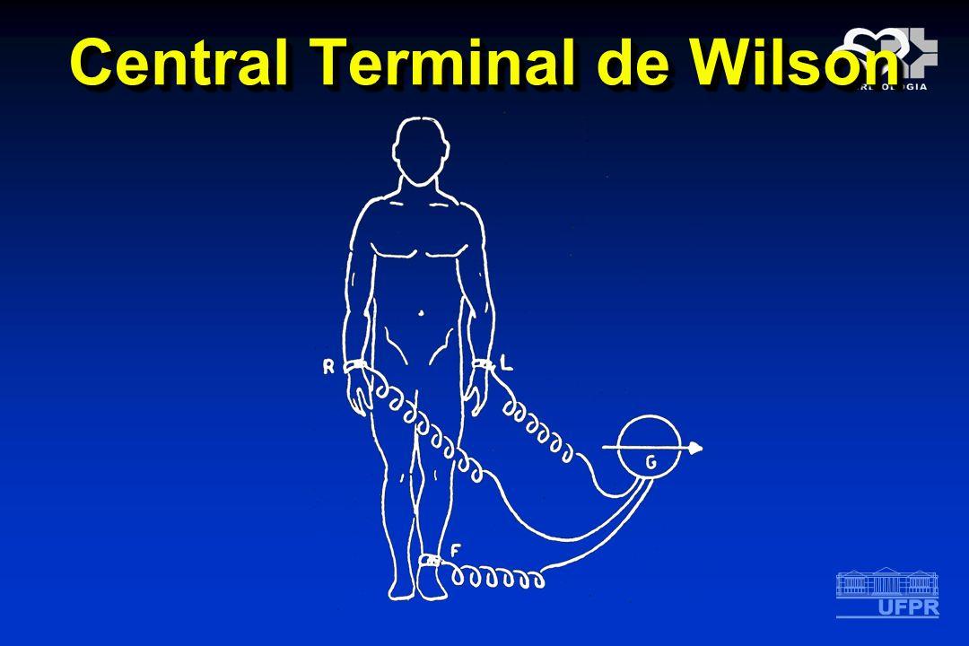 Central Terminal de Wilson