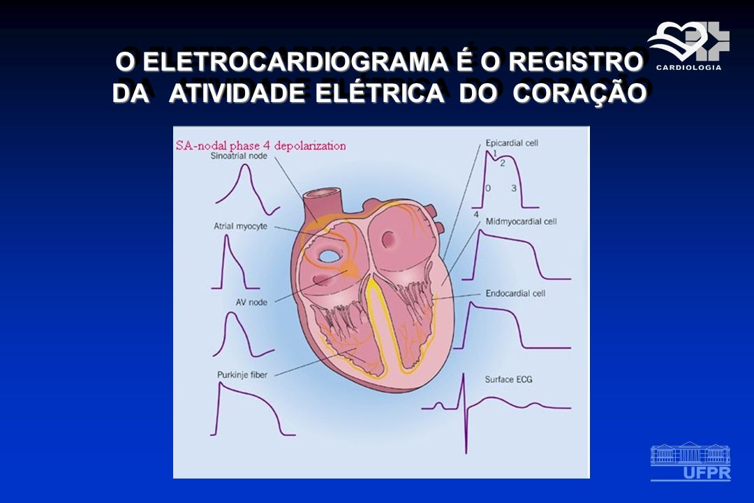 Aplicações do Eletrocardiograma Isquemia miocárdica e infarto Sobrecargas (hipertrofia) atriais e ventriculares Arritmias Efeito de medicamentos Ex.Digital Alterações eletrolíticas Ex.