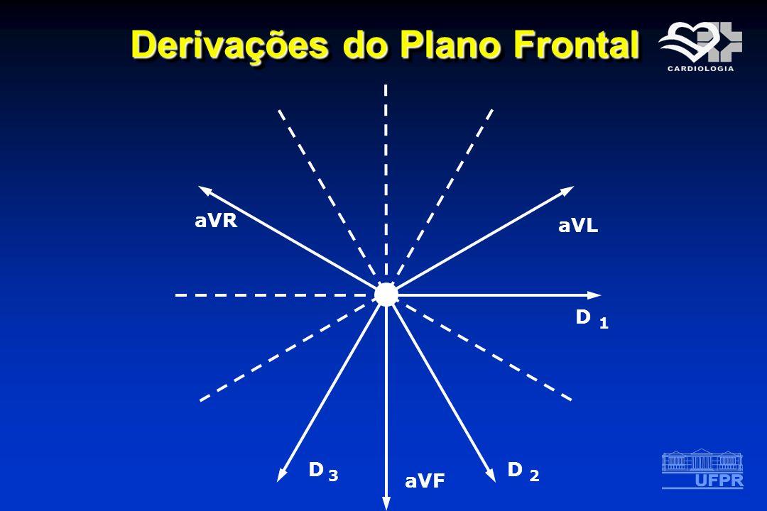 Derivações do Plano Frontal D 1D 1 aVL D 2 aVF D 3D 3 aVR