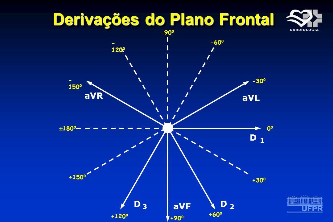 Derivações do Plano Frontal D 1D 1 aVL D 2 aVF D 3D 3 aVR 0 -30 0 -60 0 -90 0 - 120 0 - 150 0 180 0 +30 0 +60 0 +90 0 +120 0 +150 0
