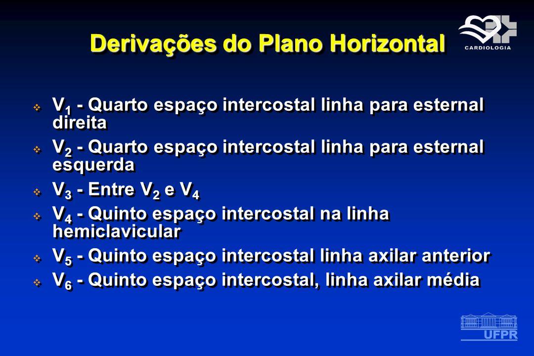 Derivações do Plano Horizontal V 1 - Quarto espaço intercostal linha para esternal direita V 2 - Quarto espaço intercostal linha para esternal esquerd