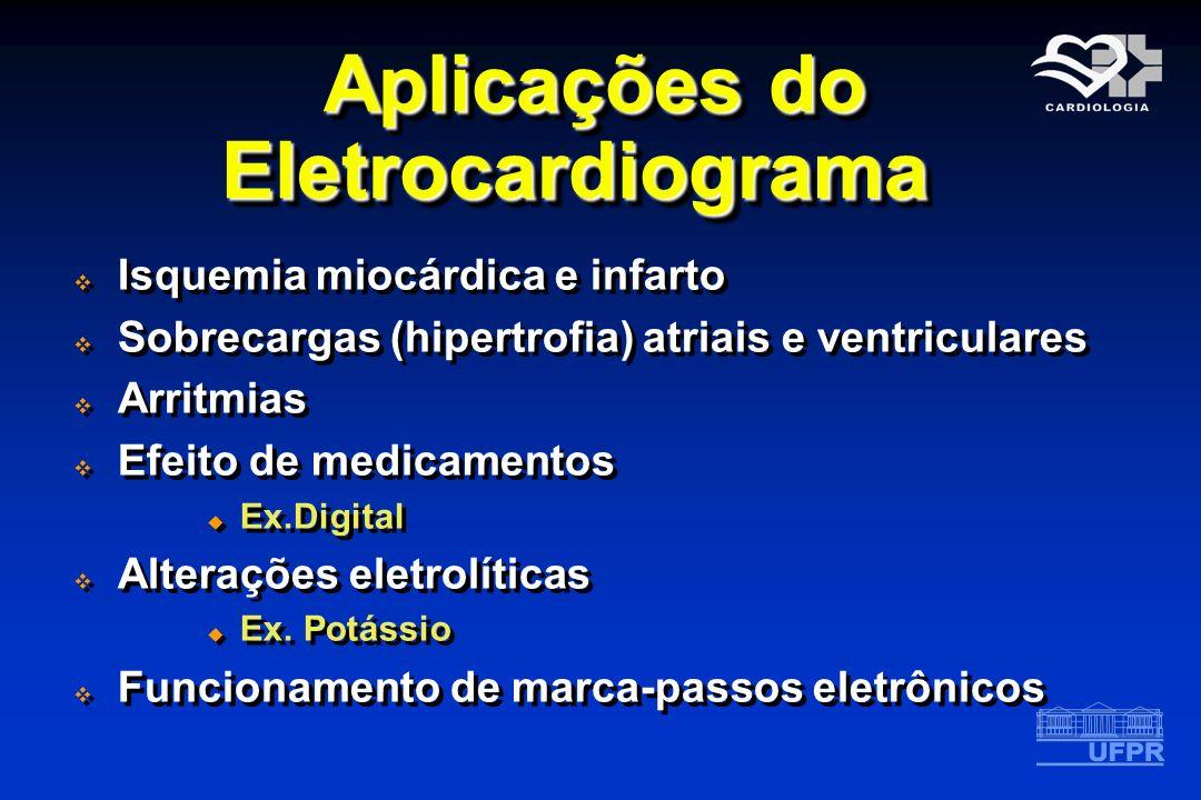 Aplicações do Eletrocardiograma Isquemia miocárdica e infarto Sobrecargas (hipertrofia) atriais e ventriculares Arritmias Efeito de medicamentos Ex.Di