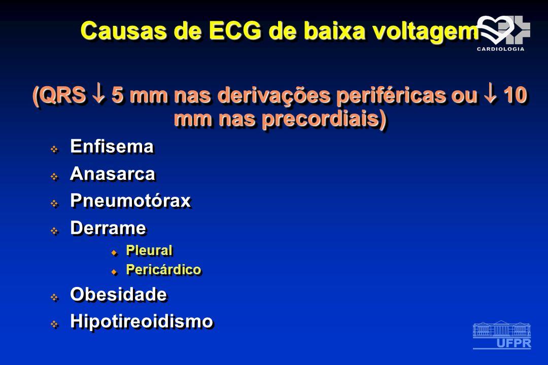 Causas de ECG de baixa voltagem (QRS 5 mm nas derivações periféricas ou 10 mm nas precordiais) Causas de ECG de baixa voltagem (QRS 5 mm nas derivaçõe
