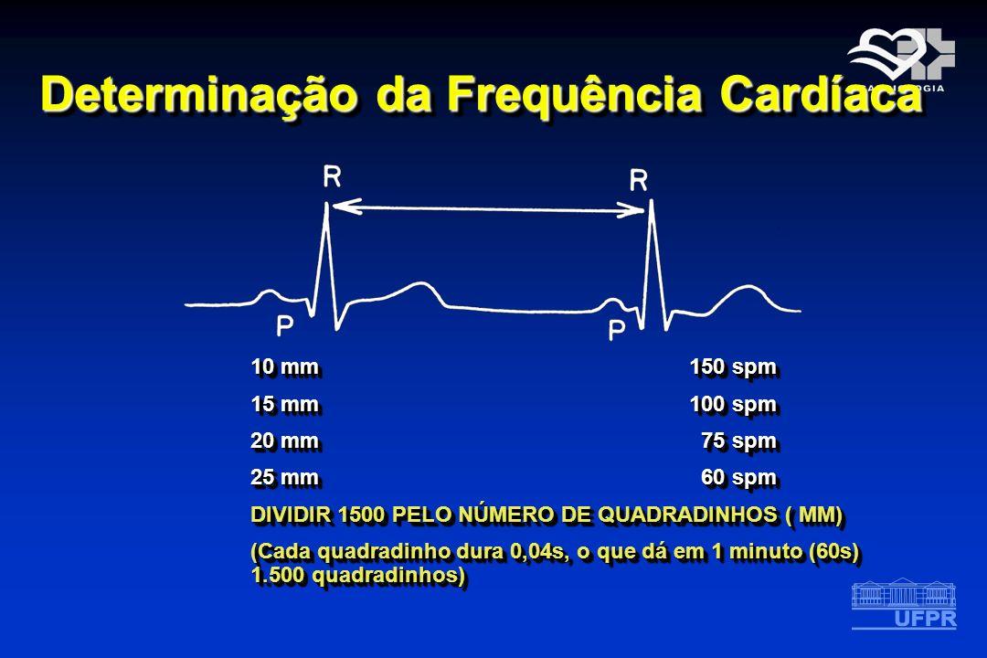 Determinação da Frequência Cardíaca 10 mm150 spm 15 mm100 spm 20 mm 75 spm 25 mm 60 spm DIVIDIR 1500 PELO NÚMERO DE QUADRADINHOS ( MM) (Cada quadradin