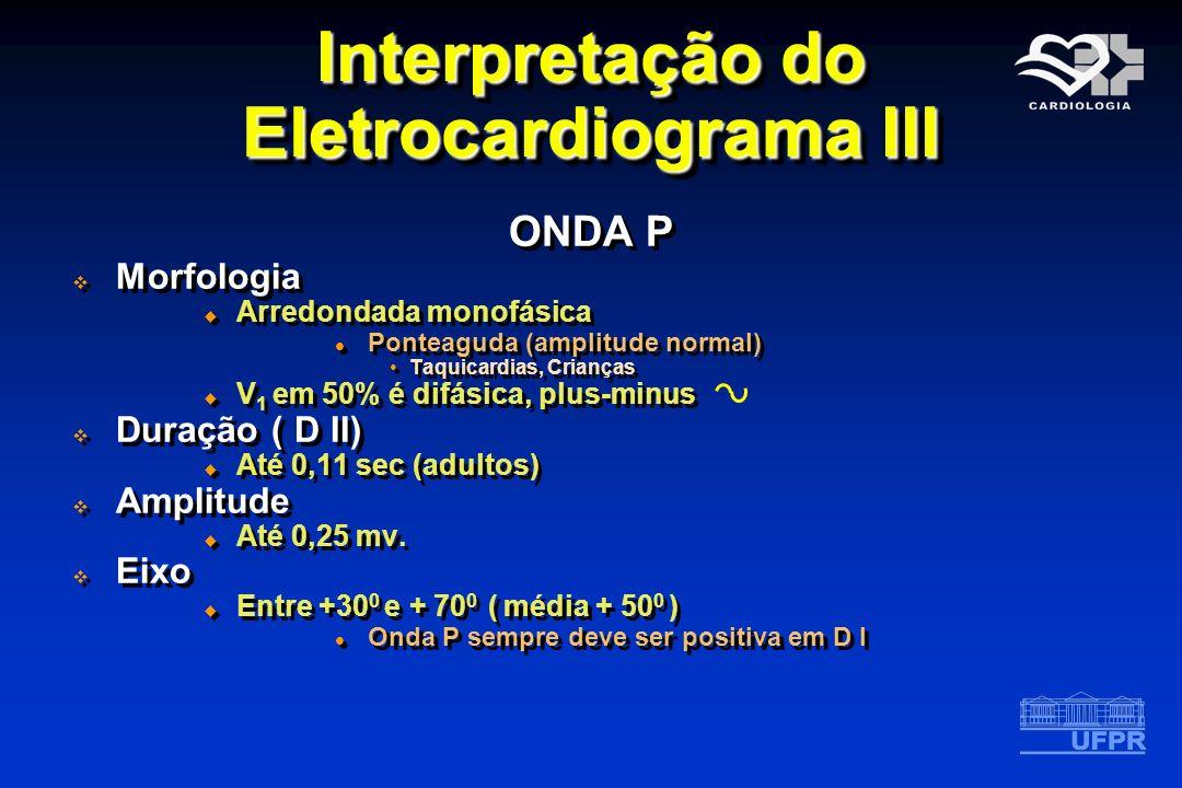 Interpretação do Eletrocardiograma III ONDA P Morfologia Arredondada monofásica Ponteaguda (amplitude normal) Taquicardias, Crianças V 1 em 50% é difá