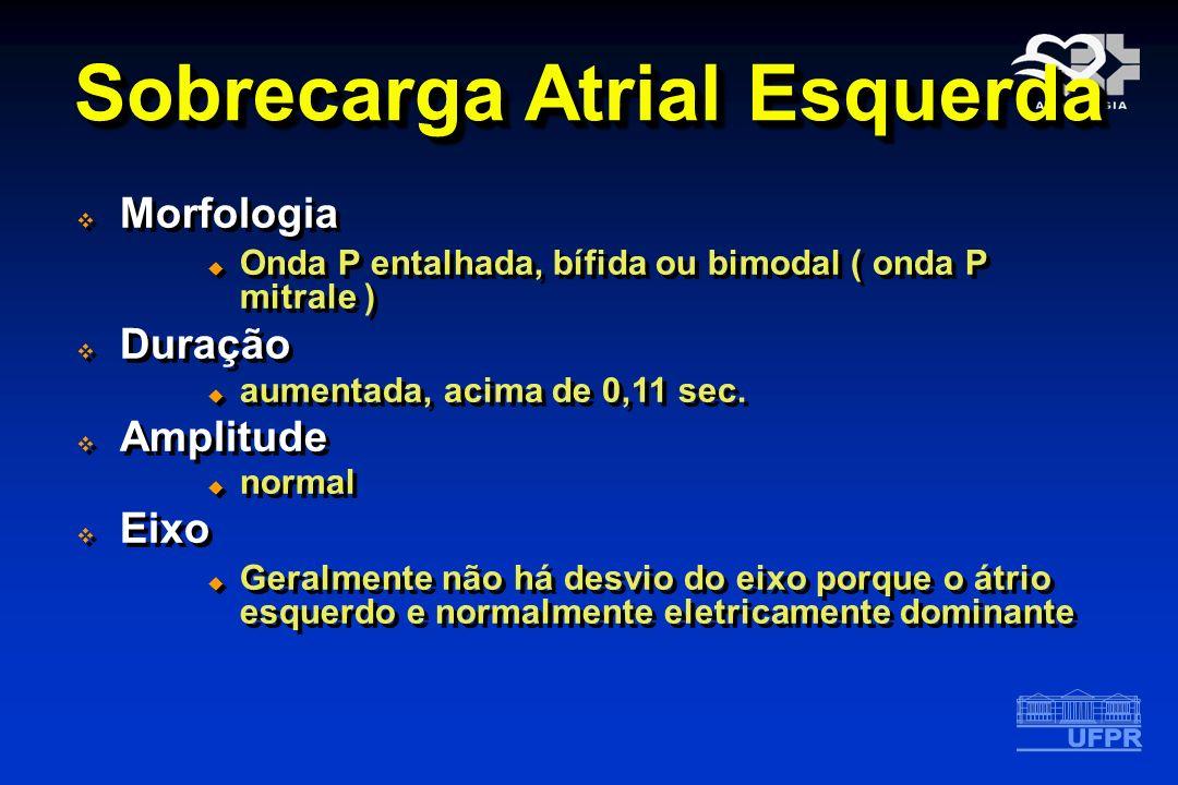 Morfologia Onda P entalhada, bífida ou bimodal ( onda P mitrale ) Duração aumentada, acima de 0,11 sec. Amplitude normal Eixo Geralmente não há desvio