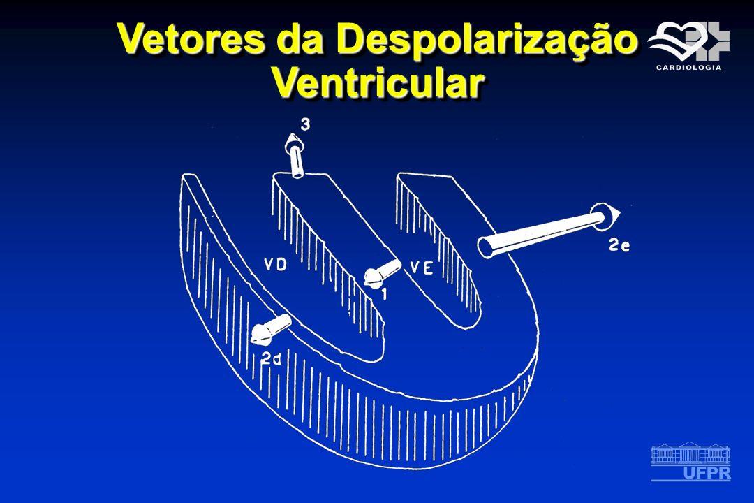 Vetores da Despolarização Ventricular