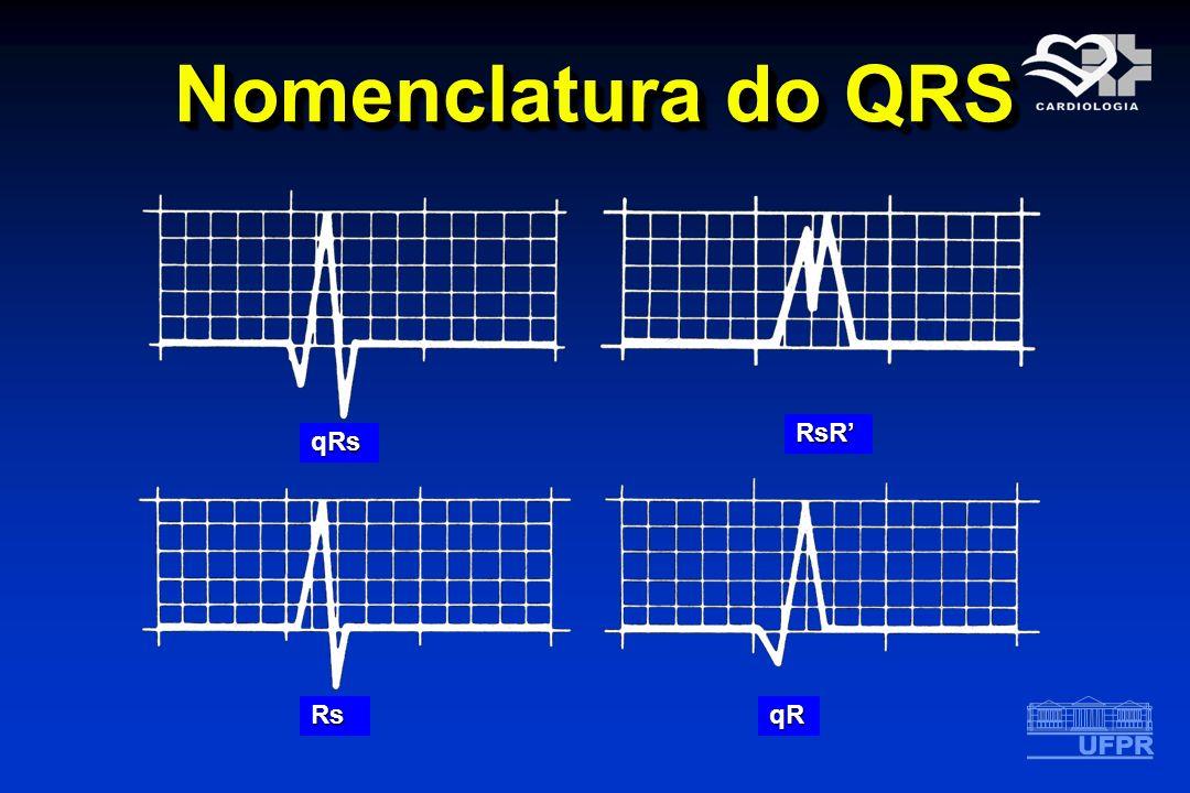 Nomenclatura do QRS qRs RsR qRRs