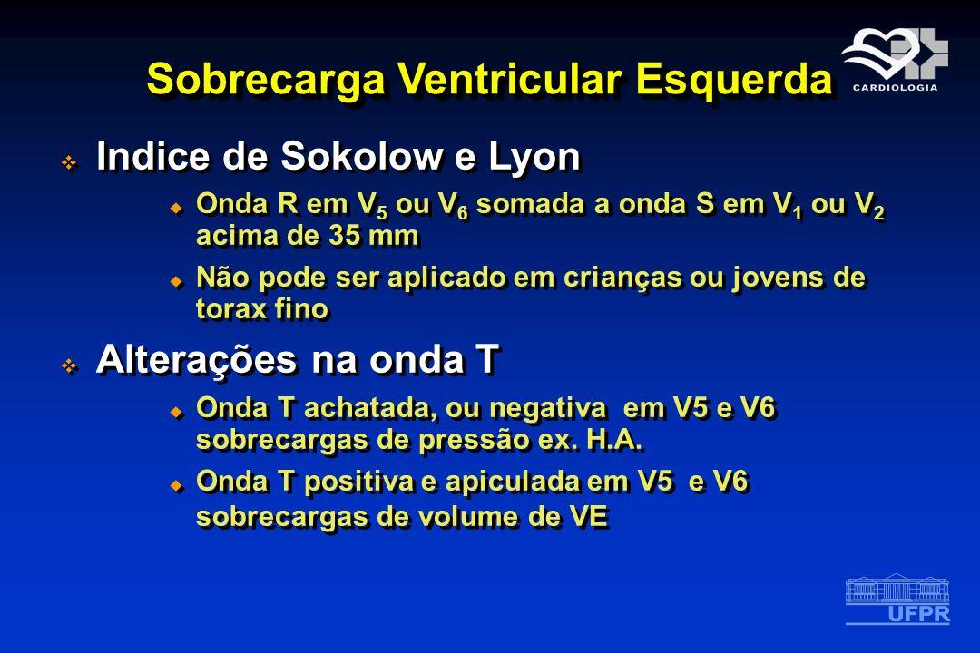 Sobrecarga Ventricular Esquerda Indice de Sokolow e Lyon Onda R em V 5 ou V 6 somada a onda S em V 1 ou V 2 acima de 35 mm Não pode ser aplicado em cr