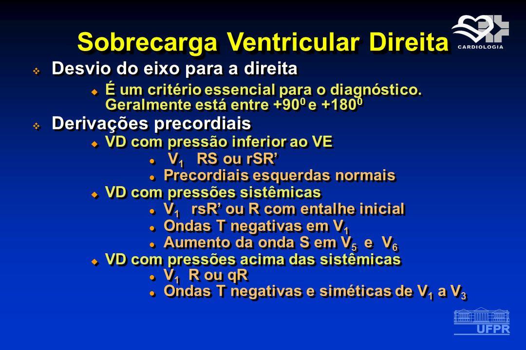 Sobrecarga Ventricular Direita Desvio do eixo para a direita É um critério essencial para o diagnóstico. Geralmente está entre +90 0 e +180 0 Derivaçõ