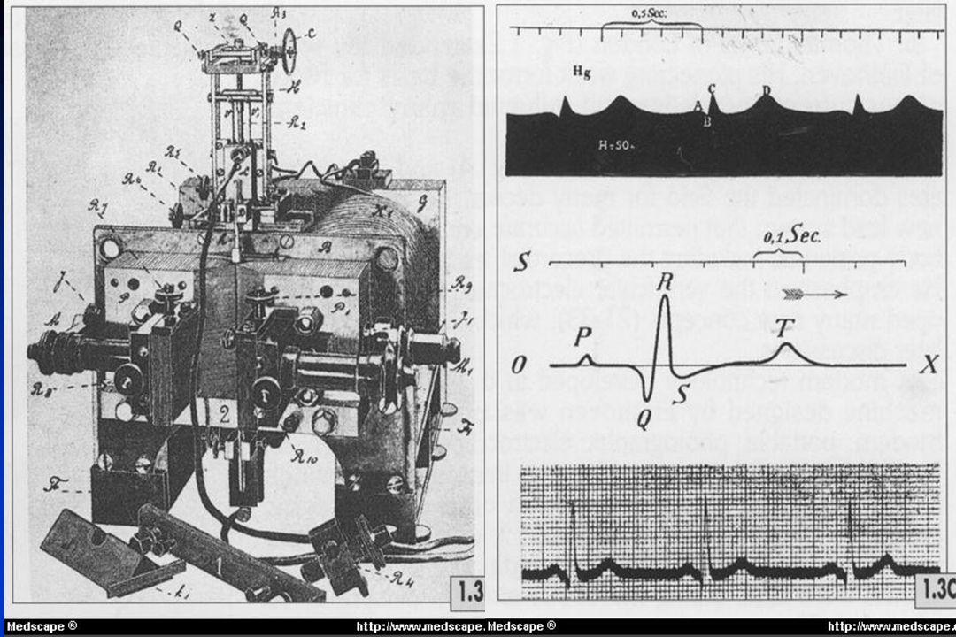 Ondas do Eletrocardiograma Descartes (1596-1650) Pontos em curvas – P e Q Waller (1887) – 1º ECG Correlação anatômica V1 e V2 - ativação elétrica dos ventrículos Einthoven (1894) A – ativação atrial e B – ativação ventricular P – ativação atrial ABCD PQRST Descartes (1596-1650) Pontos em curvas – P e Q Waller (1887) – 1º ECG Correlação anatômica V1 e V2 - ativação elétrica dos ventrículos Einthoven (1894) A – ativação atrial e B – ativação ventricular P – ativação atrial ABCD PQRST