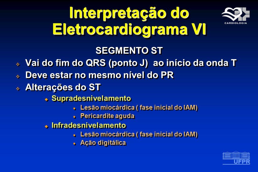 Interpretação do Eletrocardiograma VI SEGMENTO ST Vai do fim do QRS (ponto J) ao início da onda T Deve estar no mesmo nível do PR Alterações do ST Sup