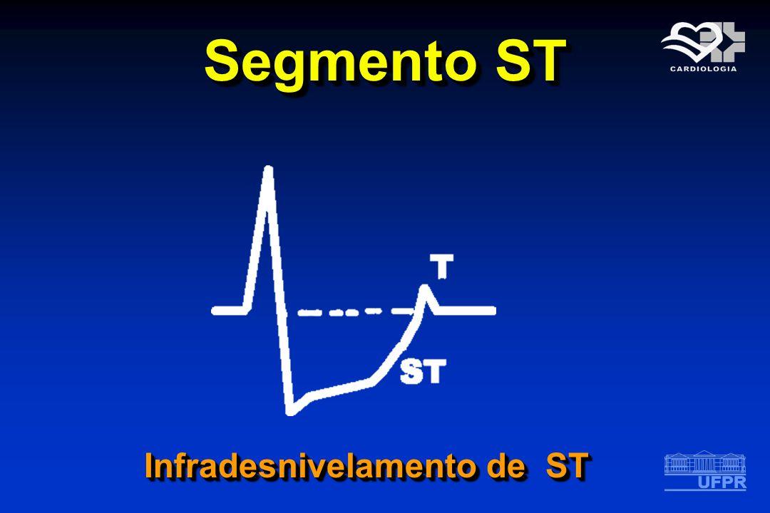 Segmento ST Infradesnivelamento de ST