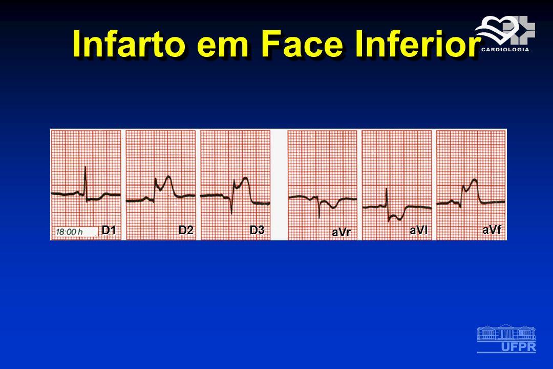 Infarto em Face Inferior D1D2D3 aVr aVl aVf