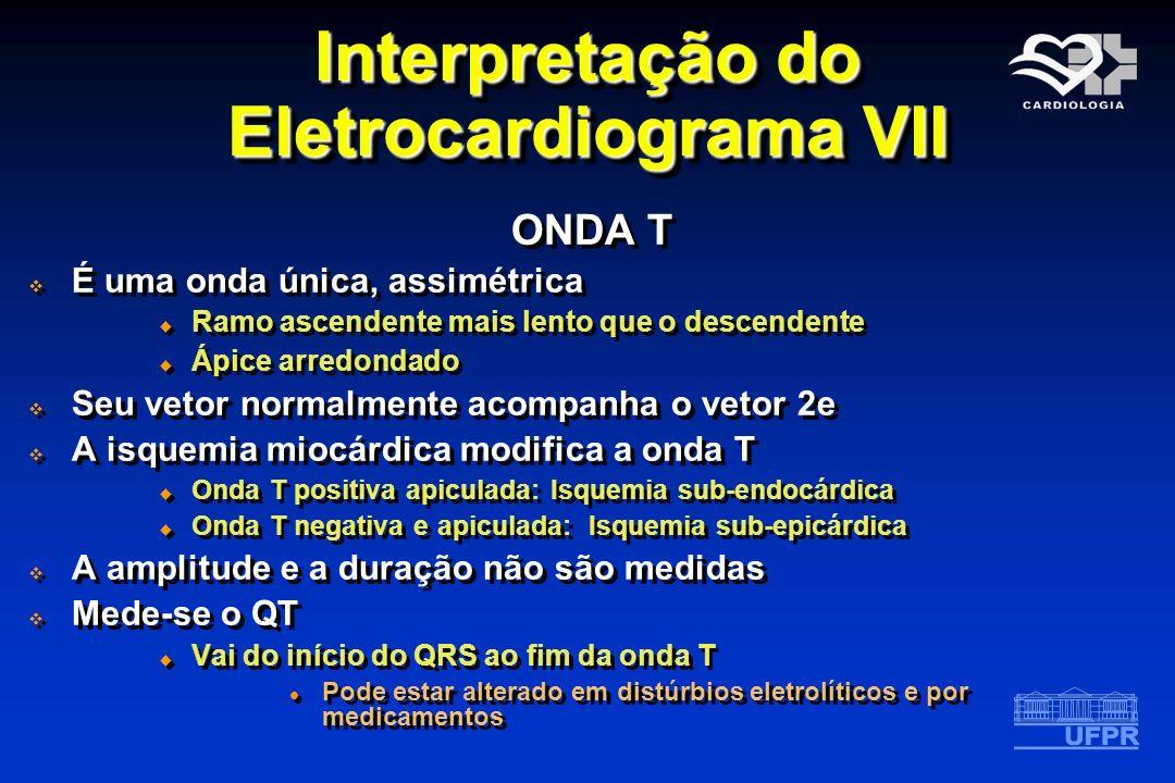 Interpretação do Eletrocardiograma VII ONDA T É uma onda única, assimétrica Ramo ascendente mais lento que o descendente Ápice arredondado Seu vetor n