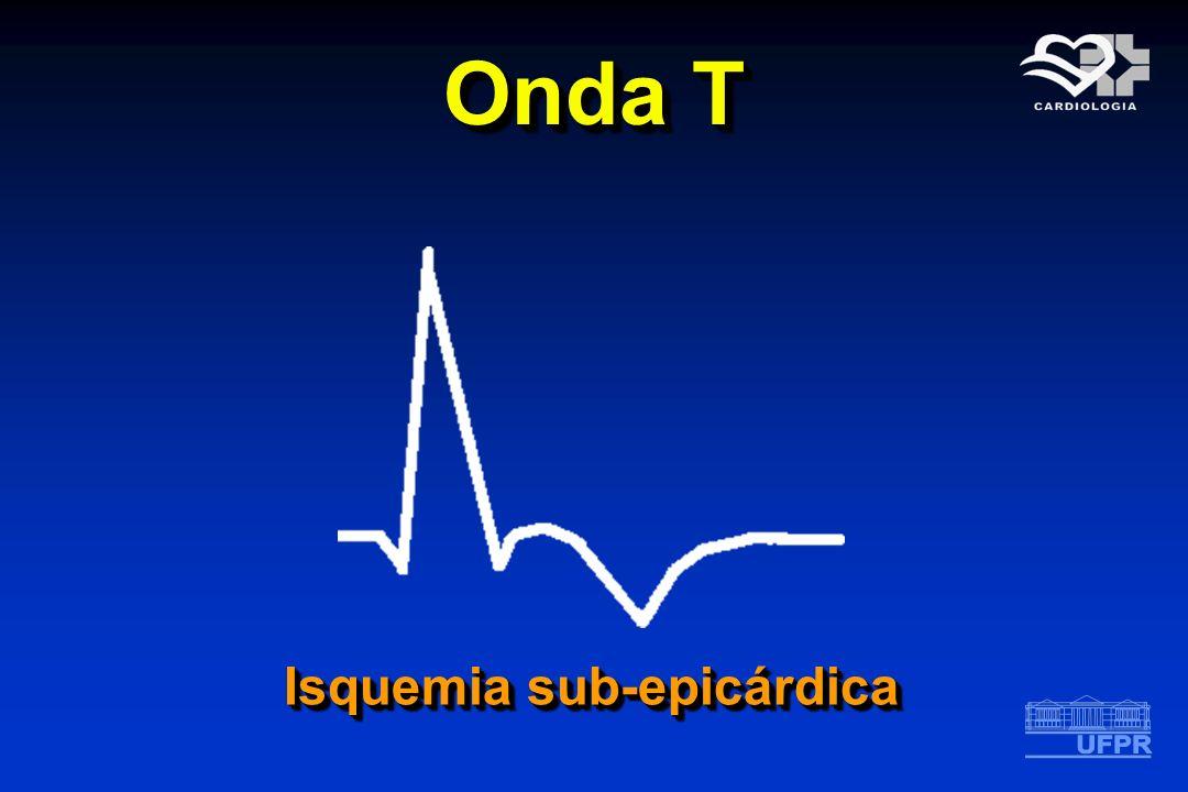 Onda T Isquemia sub-epicárdica