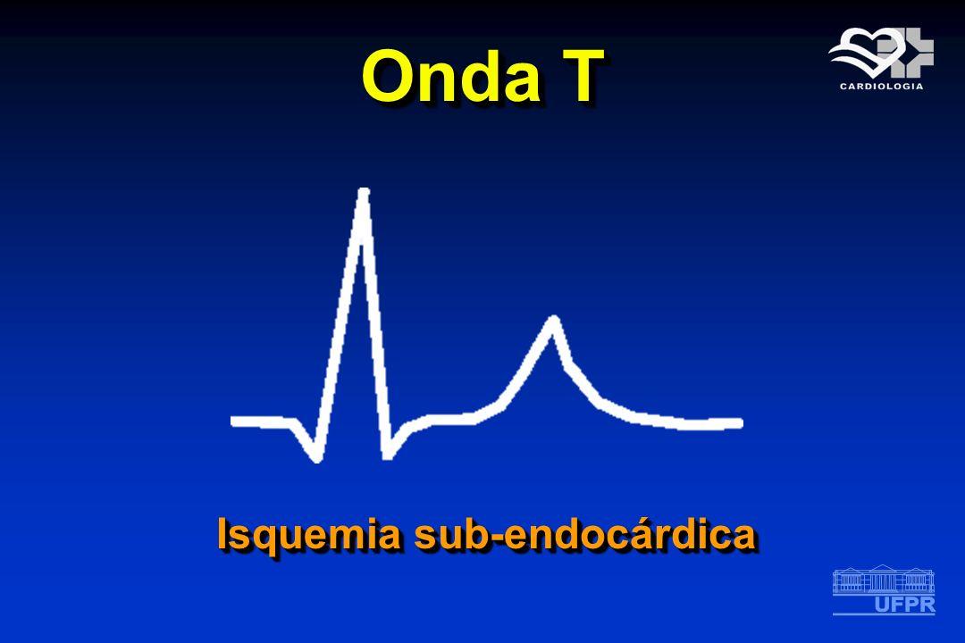 Onda T Isquemia sub-endocárdica