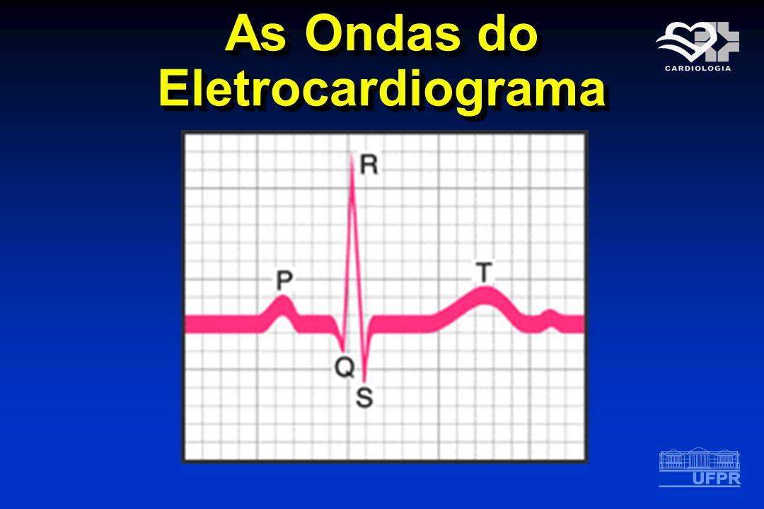 Interpretação do Eletrocardiograma V COMPLEXO QRS Morfologia variável A ativação ventricular é representada por 3 vetores O coração pode apresentar rotação sobre os seus eixos Amplitude variável O vetor médio no plano frontal está ao redor de + 60 0 Varia de – 40 0 a + 130 0 Duração de até 0,11 s duração: bloqueio de ramo (E ou D) COMPLEXO QRS Morfologia variável A ativação ventricular é representada por 3 vetores O coração pode apresentar rotação sobre os seus eixos Amplitude variável O vetor médio no plano frontal está ao redor de + 60 0 Varia de – 40 0 a + 130 0 Duração de até 0,11 s duração: bloqueio de ramo (E ou D)