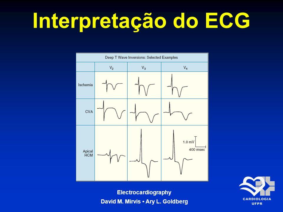 Electrocardiography David M. Mirvis Ary L. Goldberg