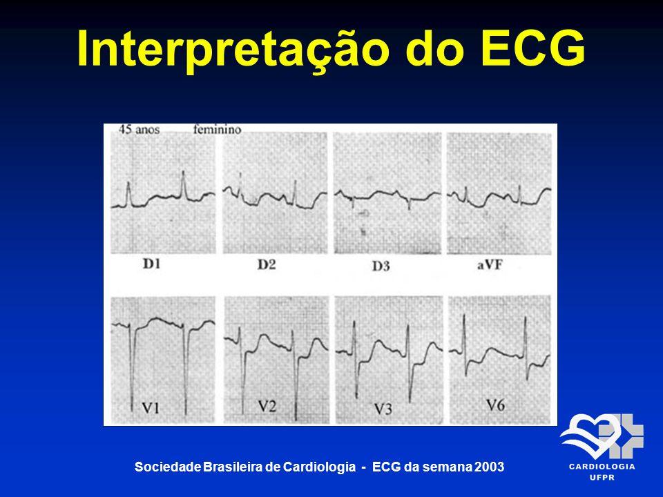 Sociedade Brasileira de Cardiologia - ECG da semana 2003 Interpretação do ECG