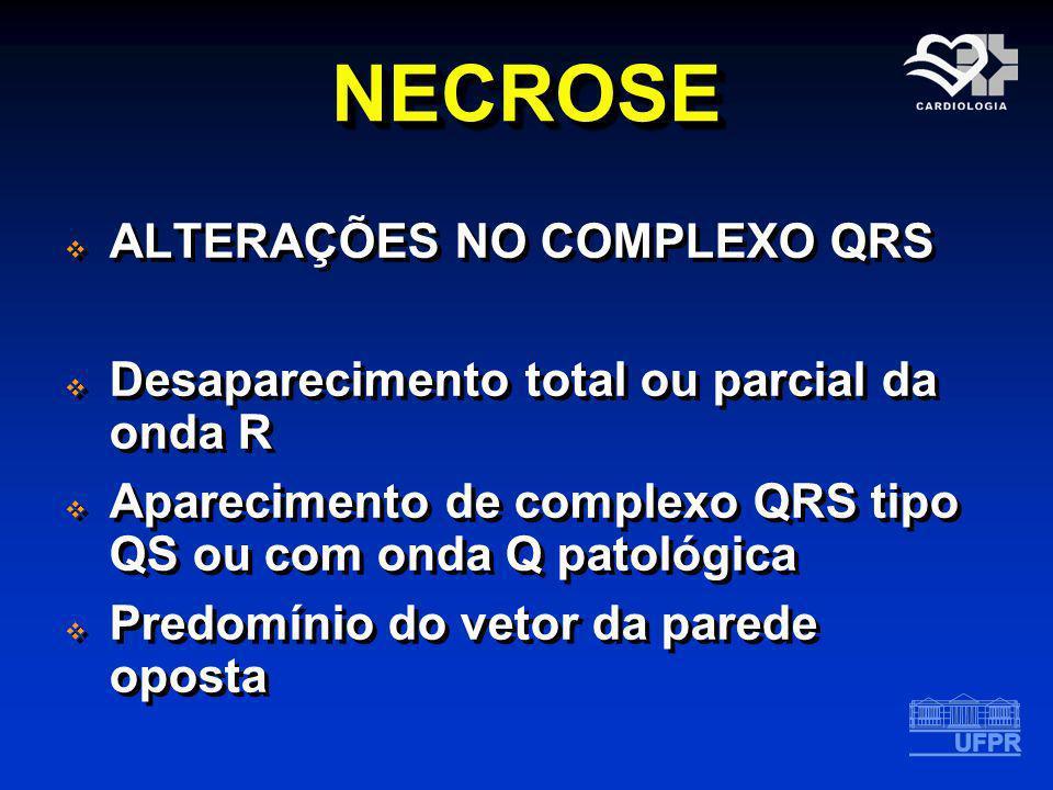 NECROSENECROSE ALTERAÇÕES NO COMPLEXO QRS Desaparecimento total ou parcial da onda R Aparecimento de complexo QRS tipo QS ou com onda Q patológica Pre