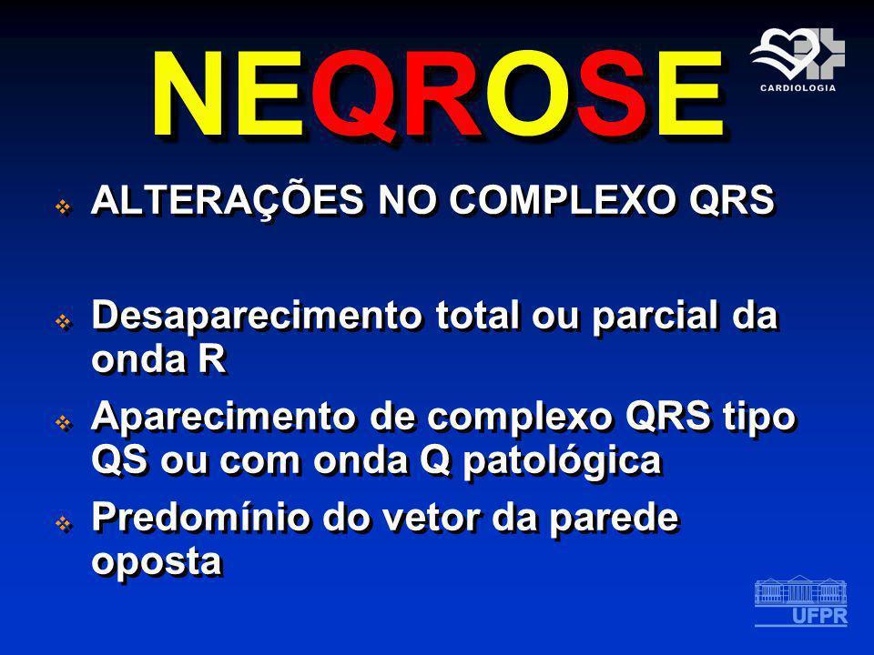 NEQROSE ALTERAÇÕES NO COMPLEXO QRS Desaparecimento total ou parcial da onda R Aparecimento de complexo QRS tipo QS ou com onda Q patológica Predomínio