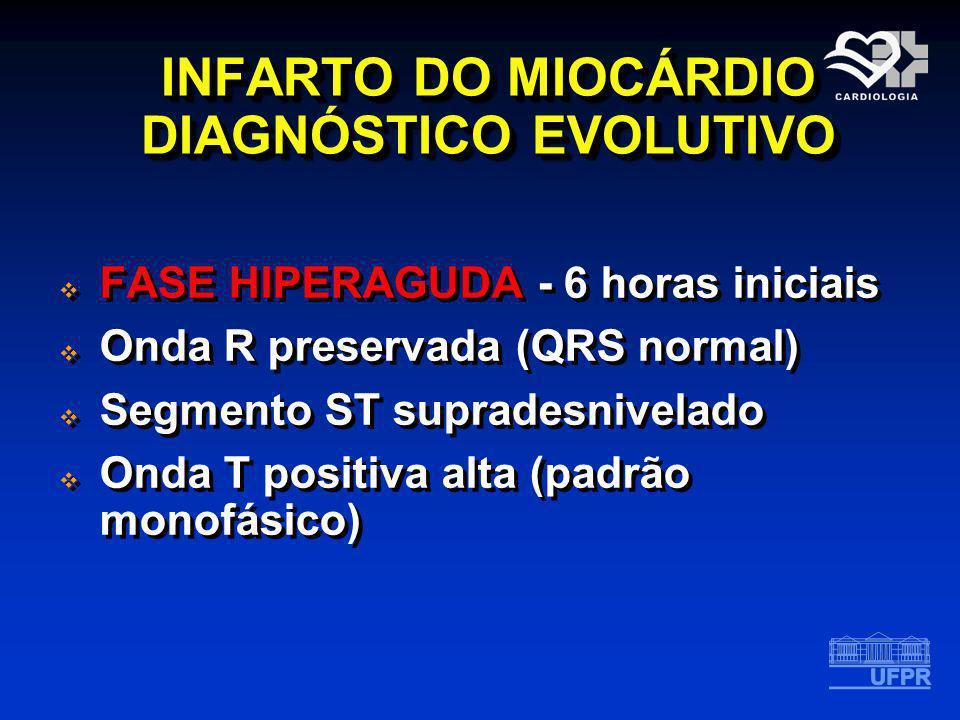 INFARTO DO MIOCÁRDIO DIAGNÓSTICO EVOLUTIVO FASE HIPERAGUDA - 6 horas iniciais Onda R preservada (QRS normal) Segmento ST supradesnivelado Onda T posit
