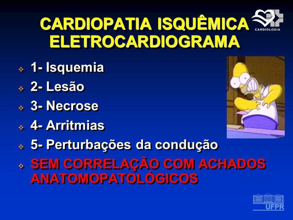 CARDIOPATIA ISQUÊMICA ELETROCARDIOGRAMA 1- Isquemia 2- Lesão 3- Necrose 4- Arritmias 5- Perturbações da condução SEM CORRELAÇÃO COM ACHADOS ANATOMOPAT