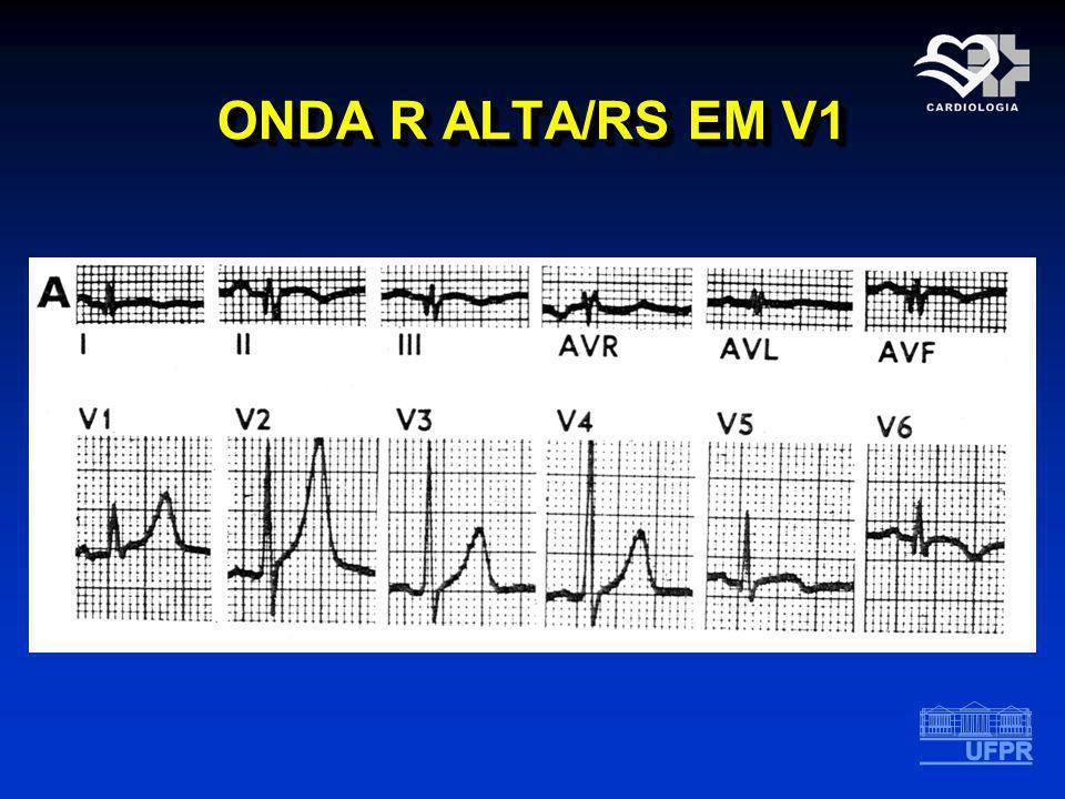 ONDA R ALTA/RS EM V1